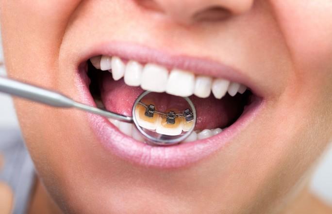 Стоматология Тюмени заплатит почти 1 млн. за плохую улыбку